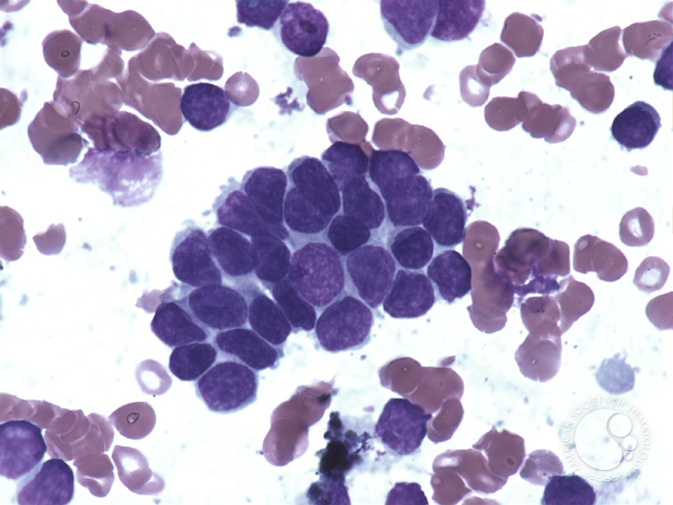 Hemophagocytic lymphohistiocytosis – reactive - 3.