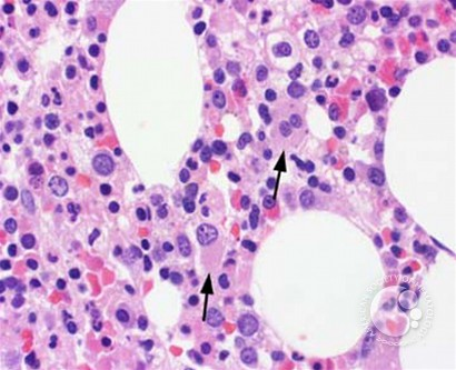 Myeloid Neoplasms. Myelodysplastic Syndrome: Refractory Ctyopenia with Multilineage Dysplasia - 4.