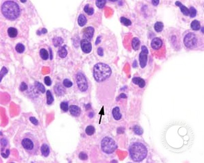 Myeloid Neoplasms. Myelodysplastic Syndrome: Refractory Ctyopenia with Multilineage Dysplasia - 5.