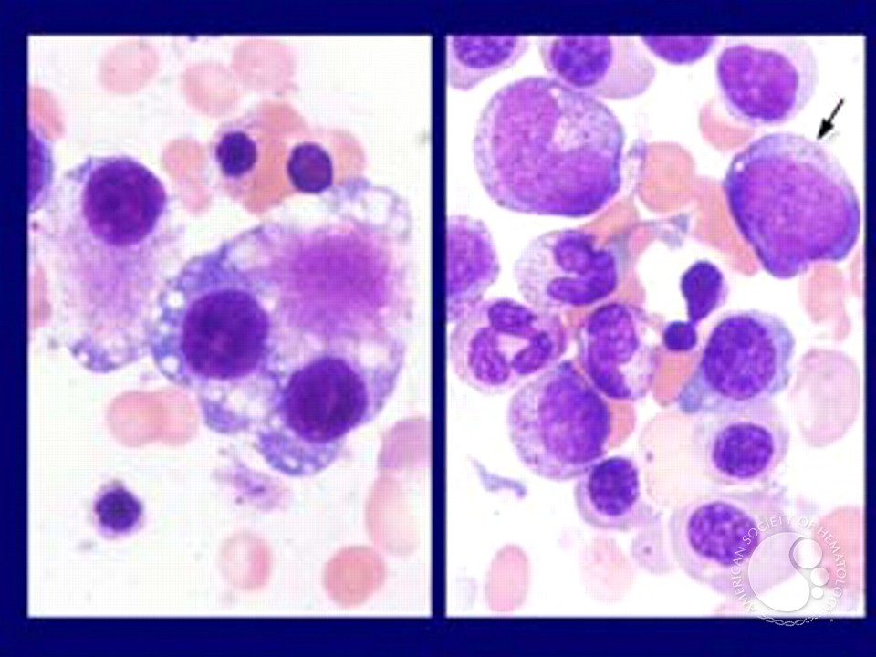 Myeloid Neoplasms. Myelodysplastic Syndrome: Refractory Ctyopenia with Multilineage Dysplasia - 7.