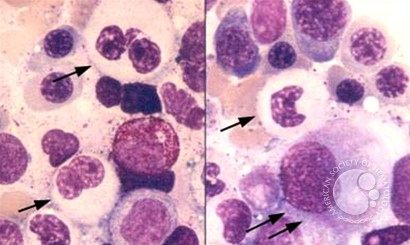 Myeloid Neoplasms. Myelodysplastic Syndrome: Refractory Ctyopenia with Multilineage Dysplasia - 9.