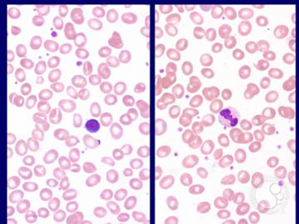 Myelodysplastic Syndrome: Myelodysplastic Syndrome Associated with Isolated del(5q)Chromosome Abnormality ('5q- Syndrome') - 1.