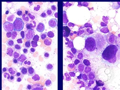 Myelodysplastic Syndrome: Myelodysplastic Syndrome Associated with Isolated del(5q)Chromosome Abnormality ('5q- Syndrome') - 6.