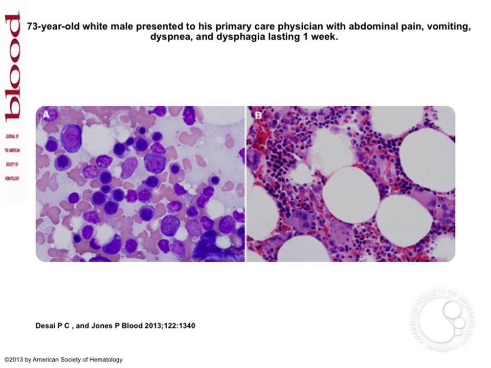 Pure white cell aplasia in a patient with thymic carcinoma