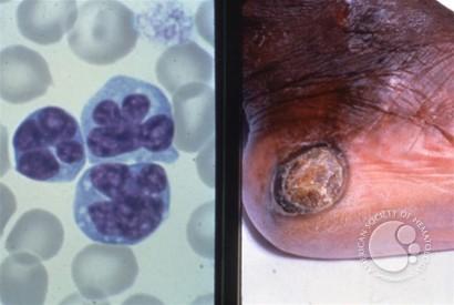 Adult t cell leukemia