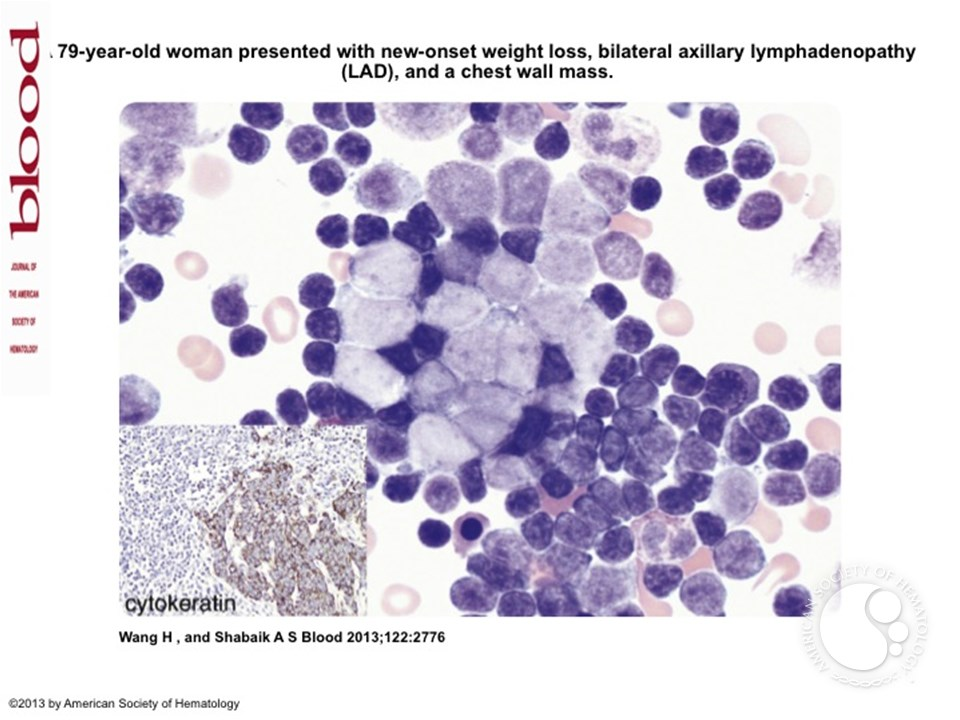 Richter s transformation in chronic lymphocytic leukemia