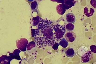 Leishmania amastigotes...