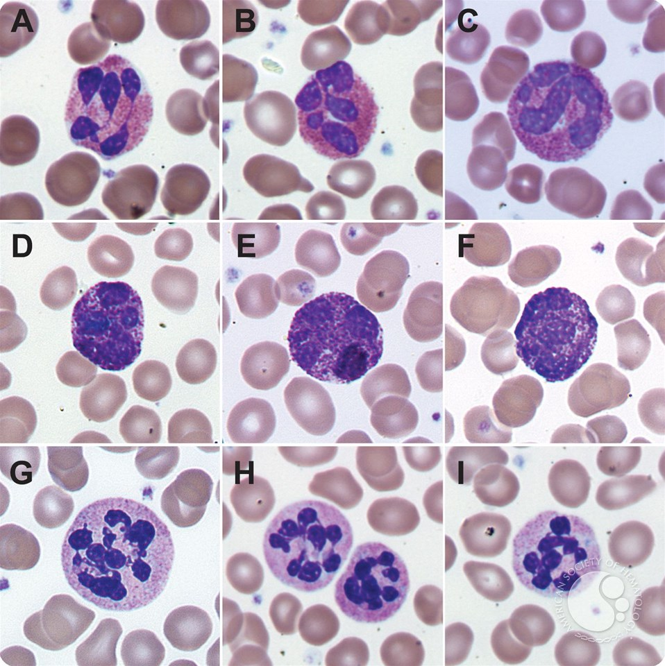 Nuclear hypersegmentation of neutrophils, eosinophils, and ...