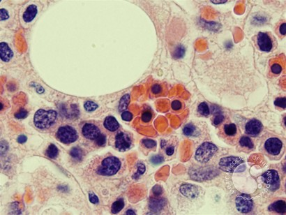 Hemophagocytosis: Bone Marrow Biopsy of Patient With Hepatitis C and Acute EBV Infection - 2.
