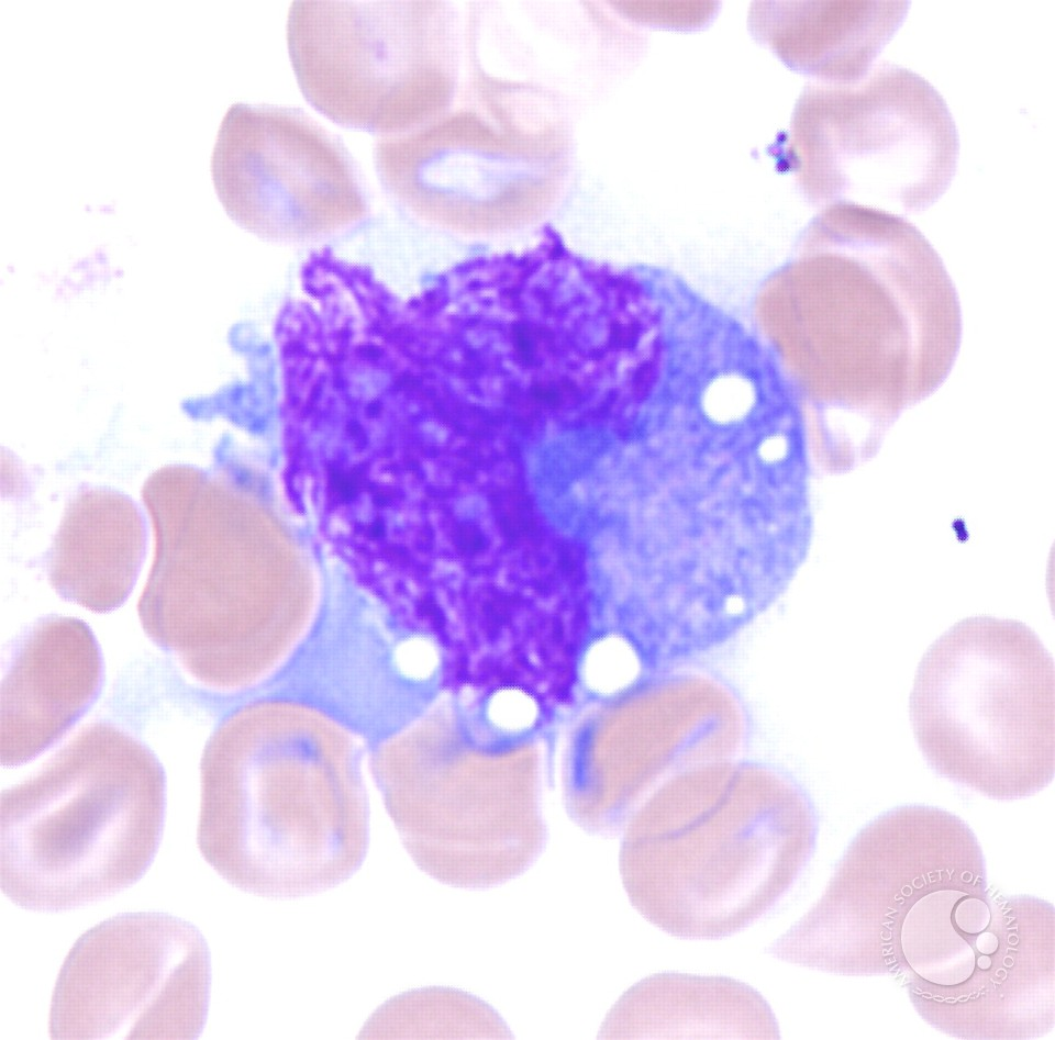 Anaplastic Large Cell Lymphoma Hallmark Cell Anaplastic Large Cell ...