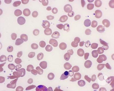 Pappenheimer Bodies in Sickle Cell Disease - 3.