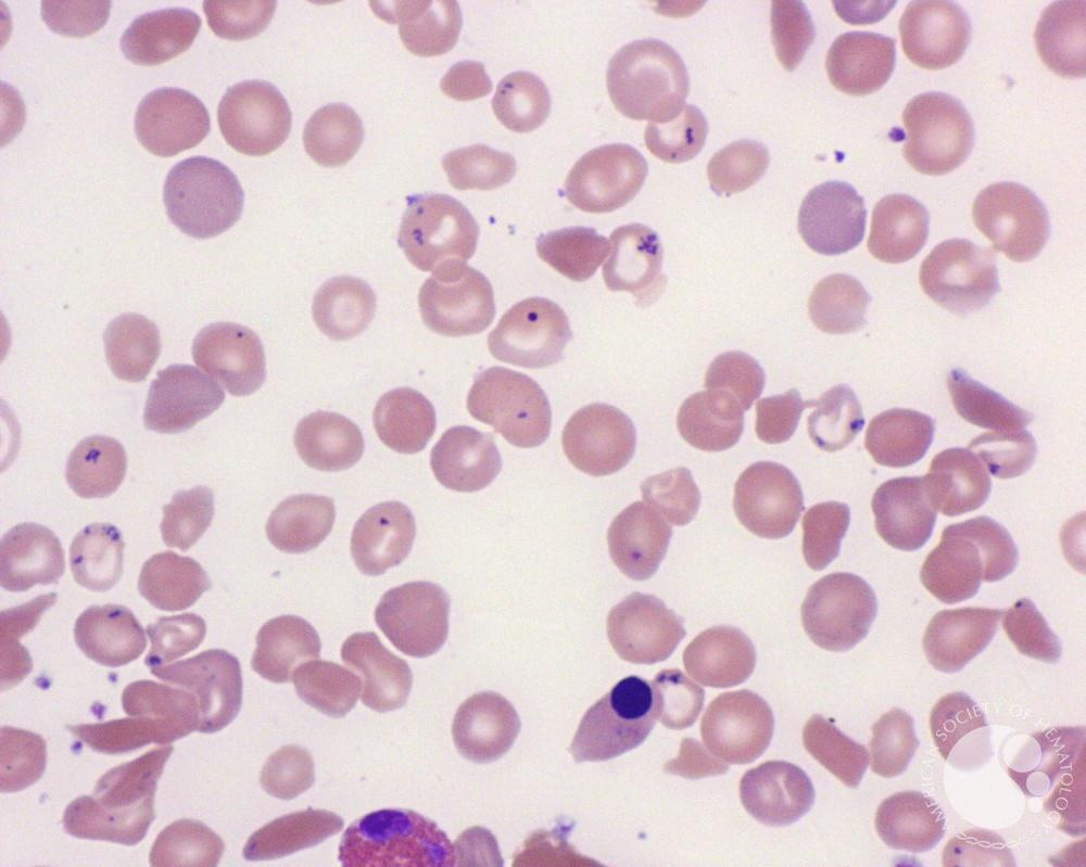 sickle cell anemia case study