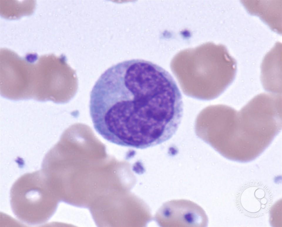 monocytes 4