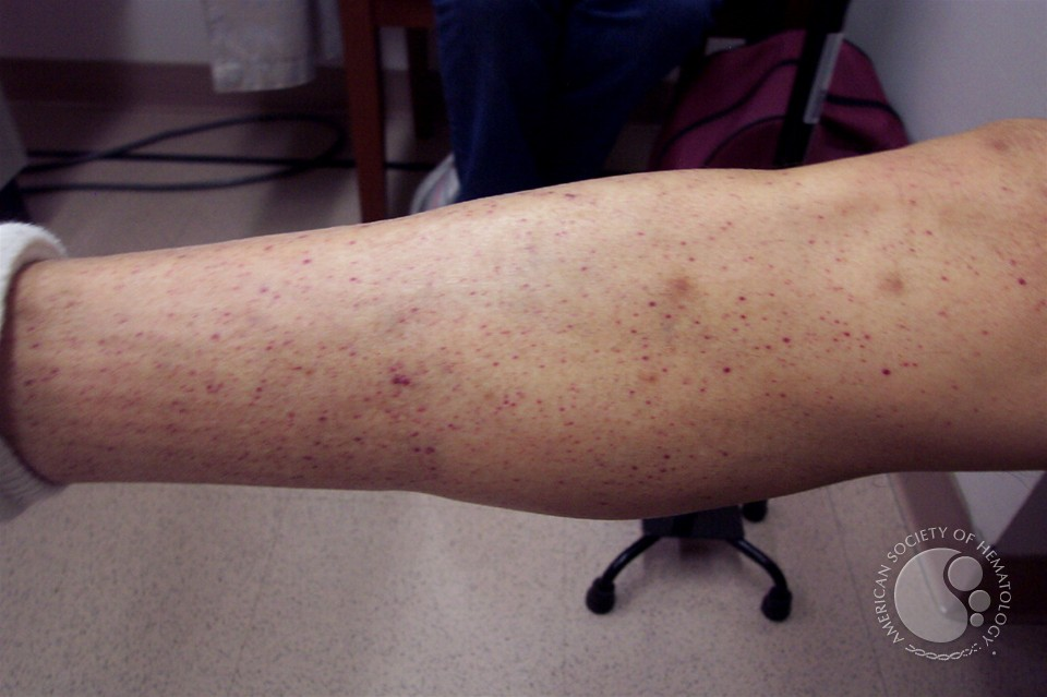 petechiae causes in adults