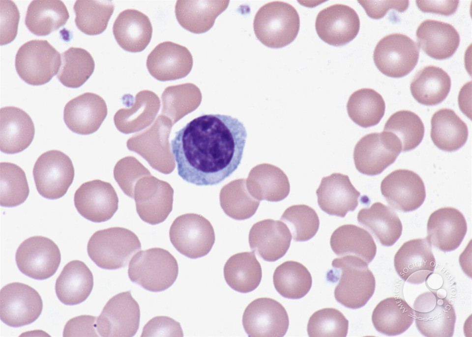 Lymphoplasmacytoid lymphocyte - 1.