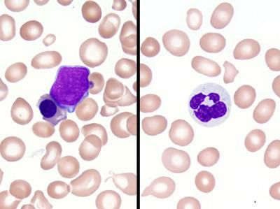 Refractory anemia with excess blasts -1 (RAEB-1) 1