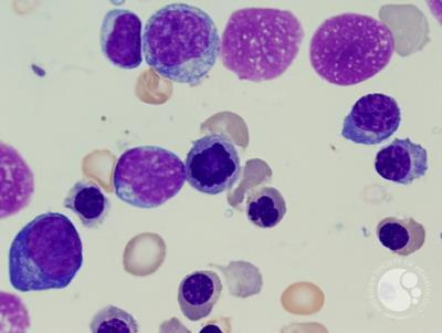 Refractory anemia with excess blasts -1 (RAEB-1) 4