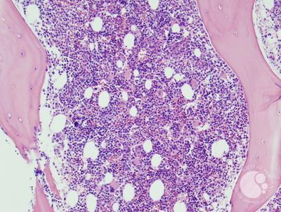 Refractory anemia with excess blasts -1 (RAEB-1) 6