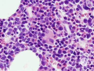 Refractory anemia with excess blasts -1 (RAEB-1) 7