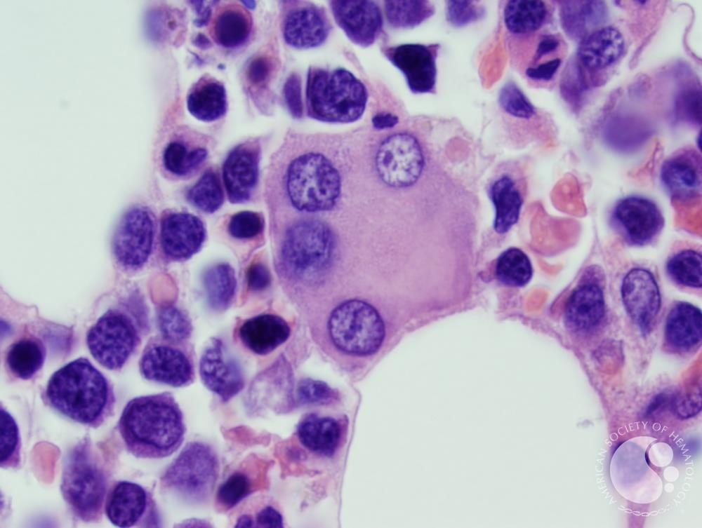 Refractory anemia with excess blasts -1 (RAEB-1) 8