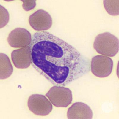 Band neutrophil