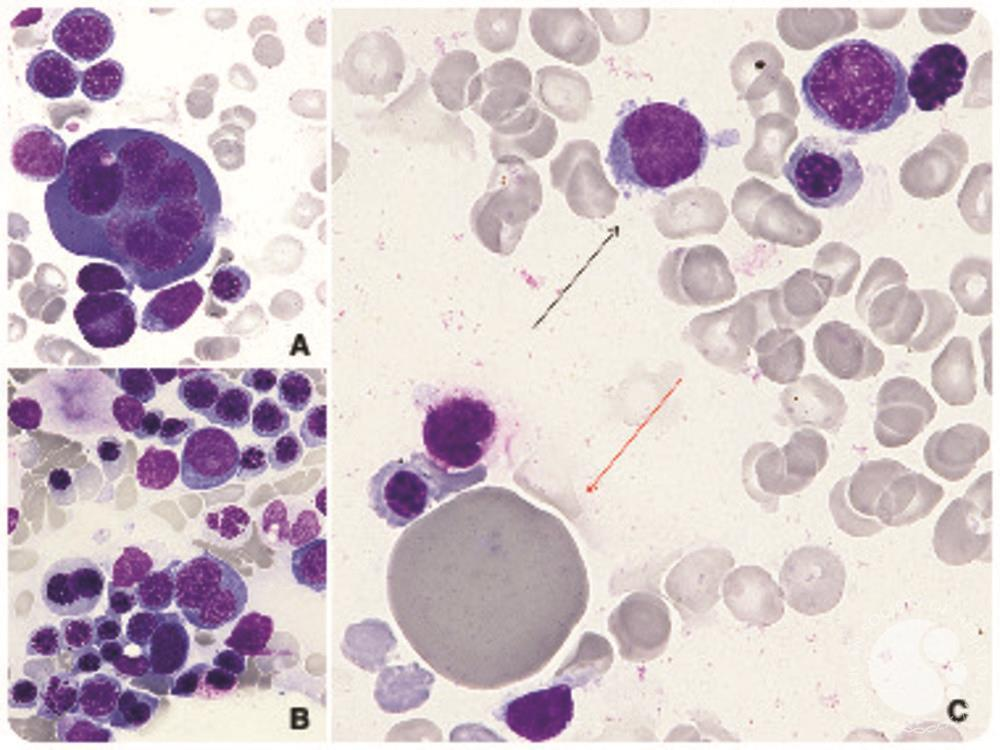 Extreme dyserythropoiesis in the setting of acute erythroid leukemia