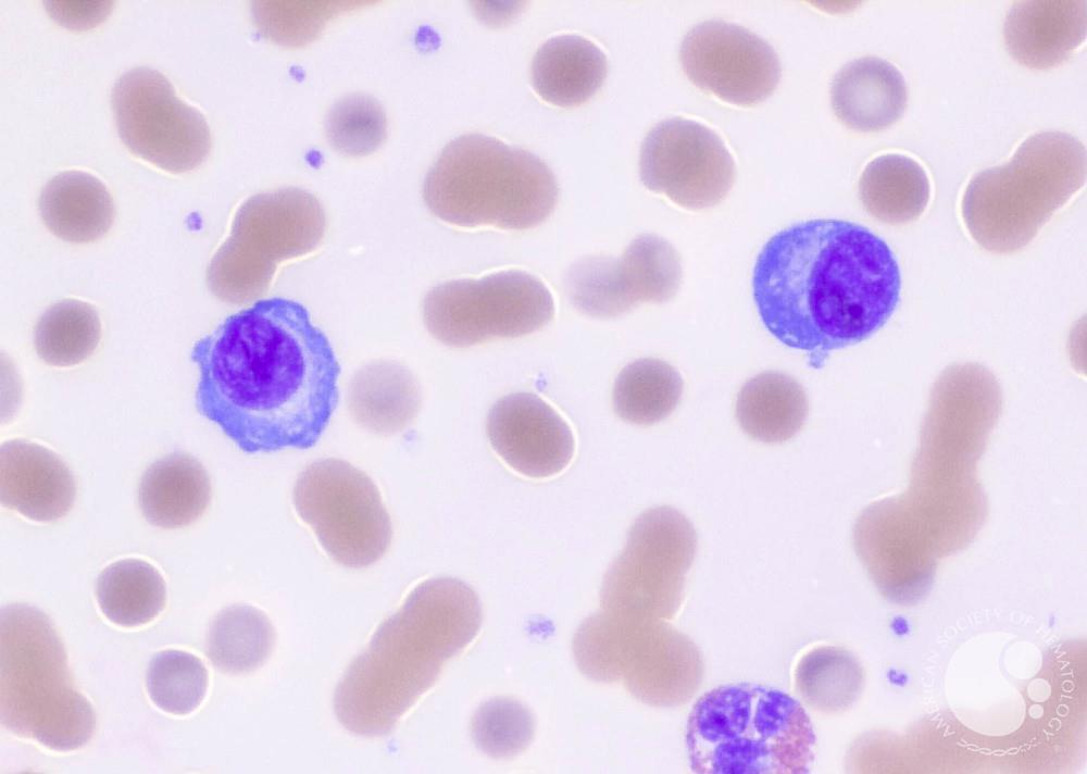 what is a plasma cell