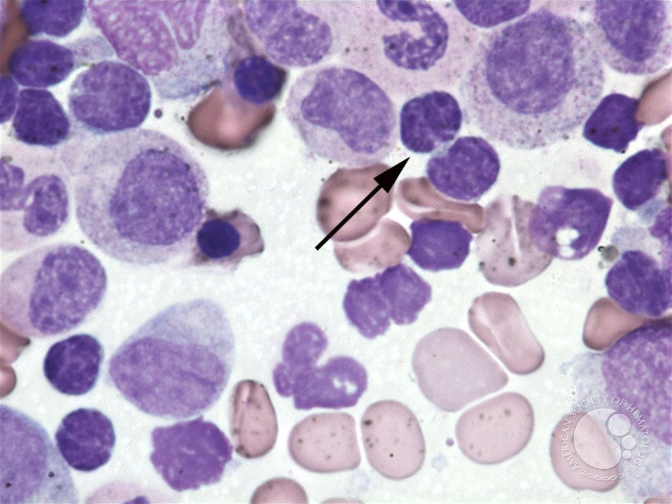 Mature B Cell Lymphoma