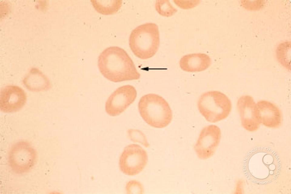 pernicious anemia - 1b, Skeleton