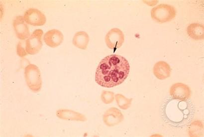 Case study- Iron deficiency anemia | Biochemistry for ...