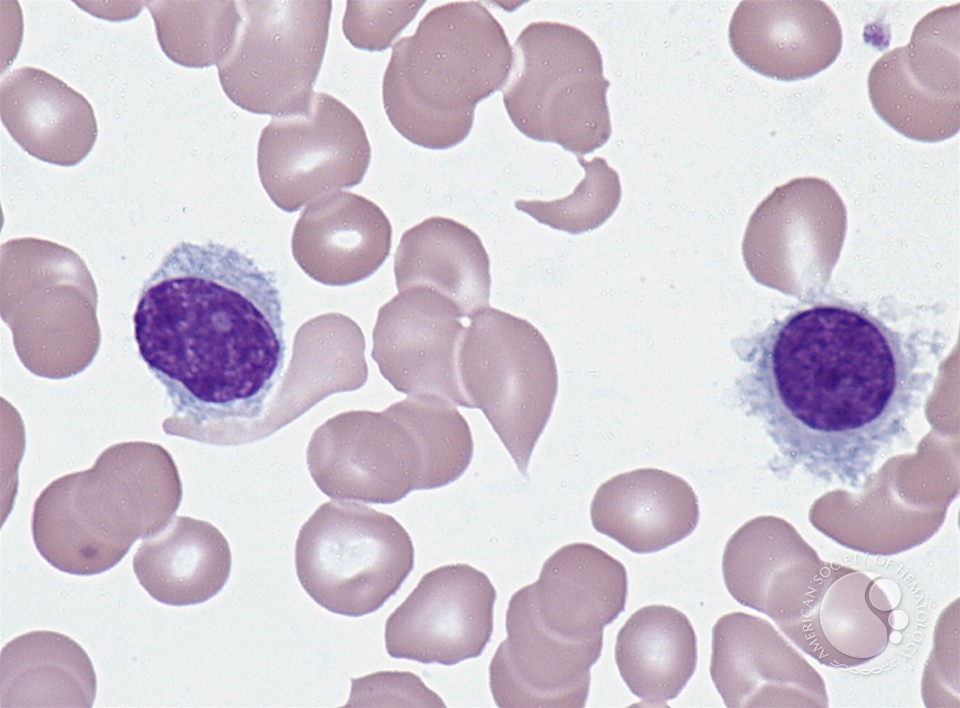 Hairy cell and other b-cell leukemias - Other - freesic.eu
