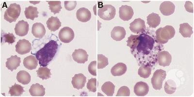 Peripheral blood findings in GM1 gangliosidosis