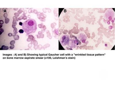 GAUCHER'S CELLS IN BONE MARROW ASPIRATE SMEARS